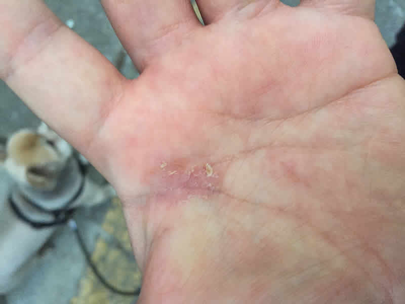 postherpetic neuralgia bumps on hand