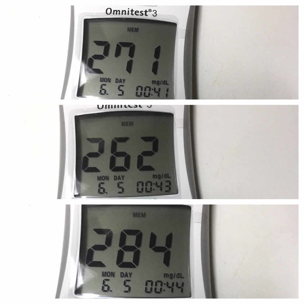 diabetes very high blood sugar test before and after eating three bananas